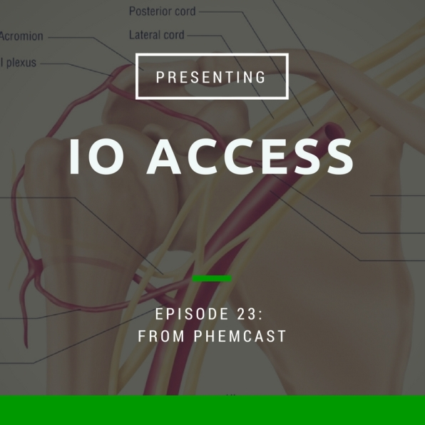 IO Access 2