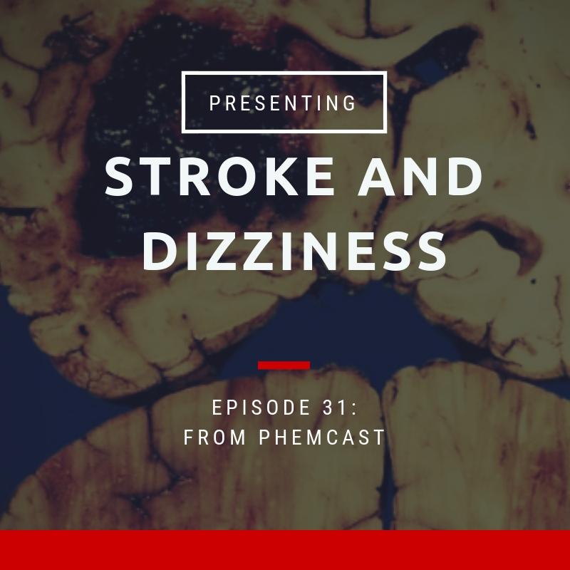 stroke and dizziness