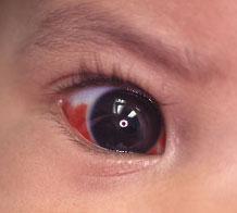 Subconjunctival haemorrhage in baby