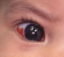 Subconjunctival haemorrhage in baby